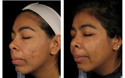How to Get Rid of Post-inflammatory Hyper pigmentation